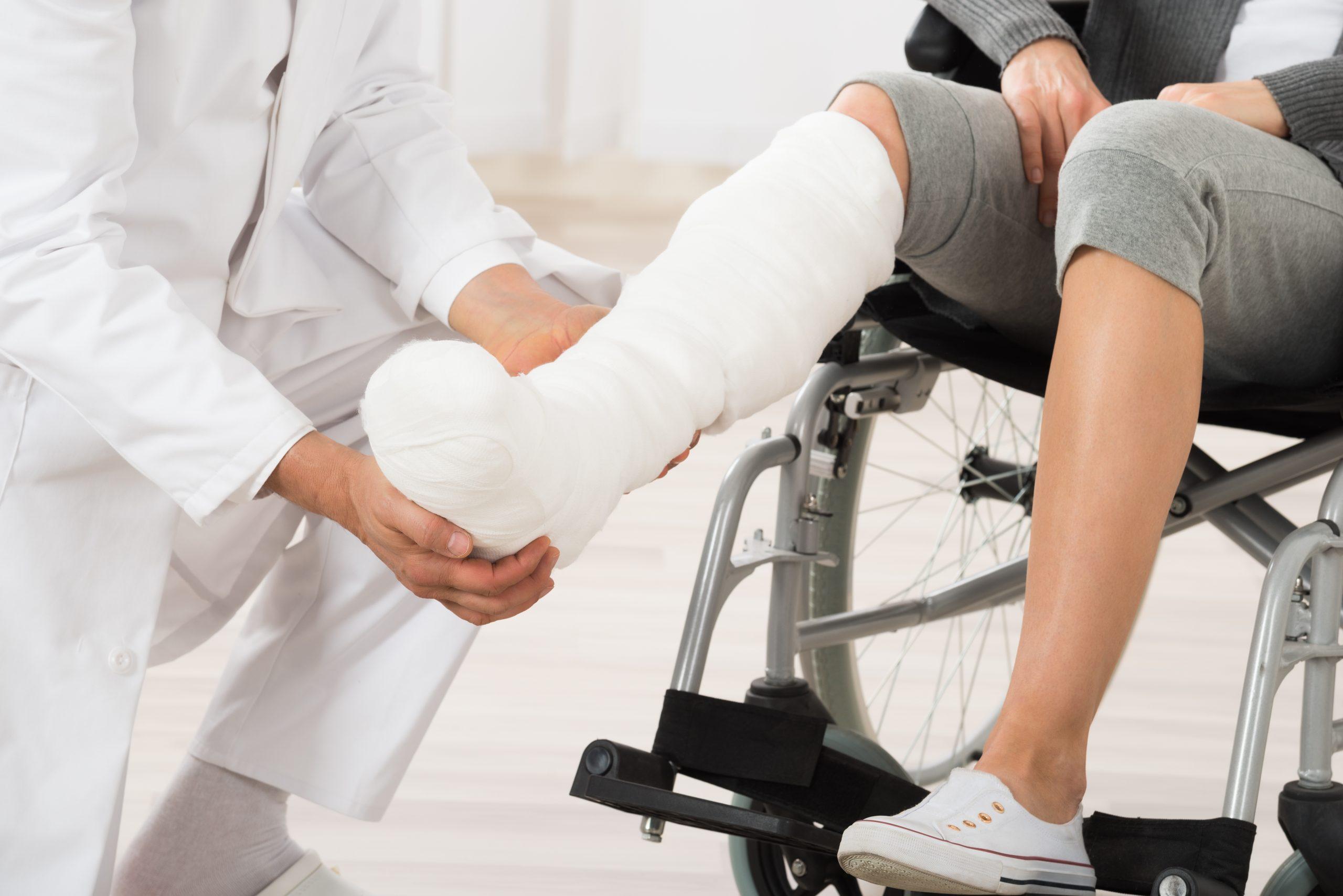 Broken bones serious injuries